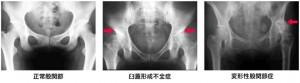 hip_osteoarthritis_02
